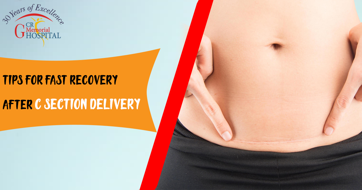 Tips for Fast Recovery After C-Section Delivery